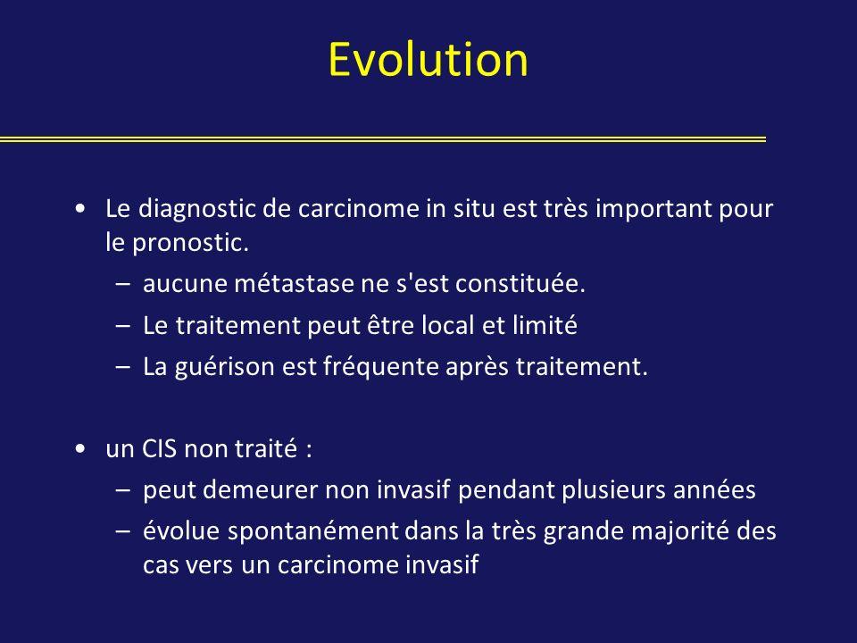 Evolution Le diagnostic de carcinome in situ est très important pour le pronostic. aucune métastase ne s est constituée.
