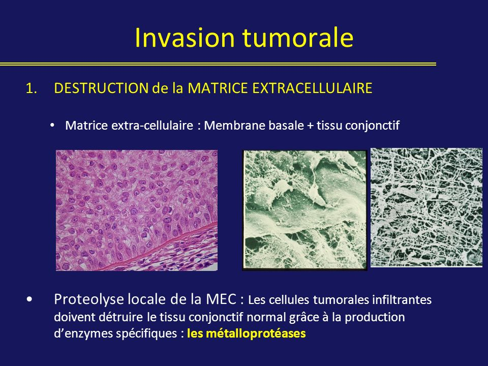 Invasion tumorale DESTRUCTION de la MATRICE EXTRACELLULAIRE