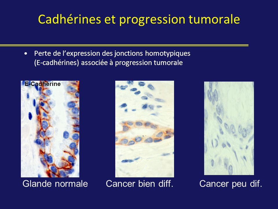 Cadhérines et progression tumorale