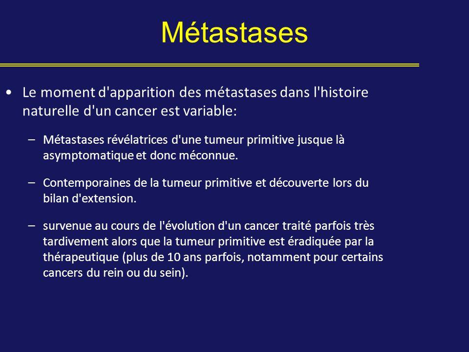 Métastases Le moment d apparition des métastases dans l histoire naturelle d un cancer est variable:
