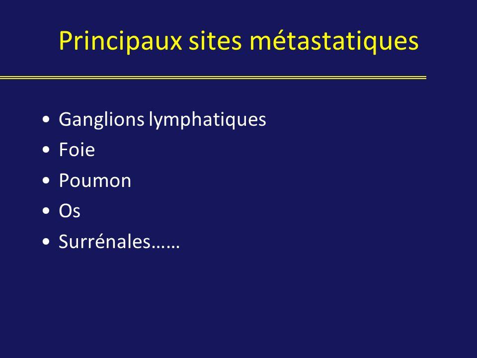 Principaux sites métastatiques