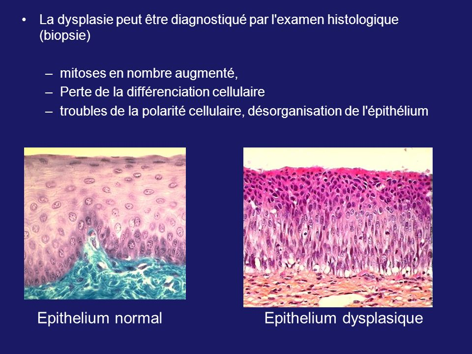Epithelium normal Epithelium dysplasique