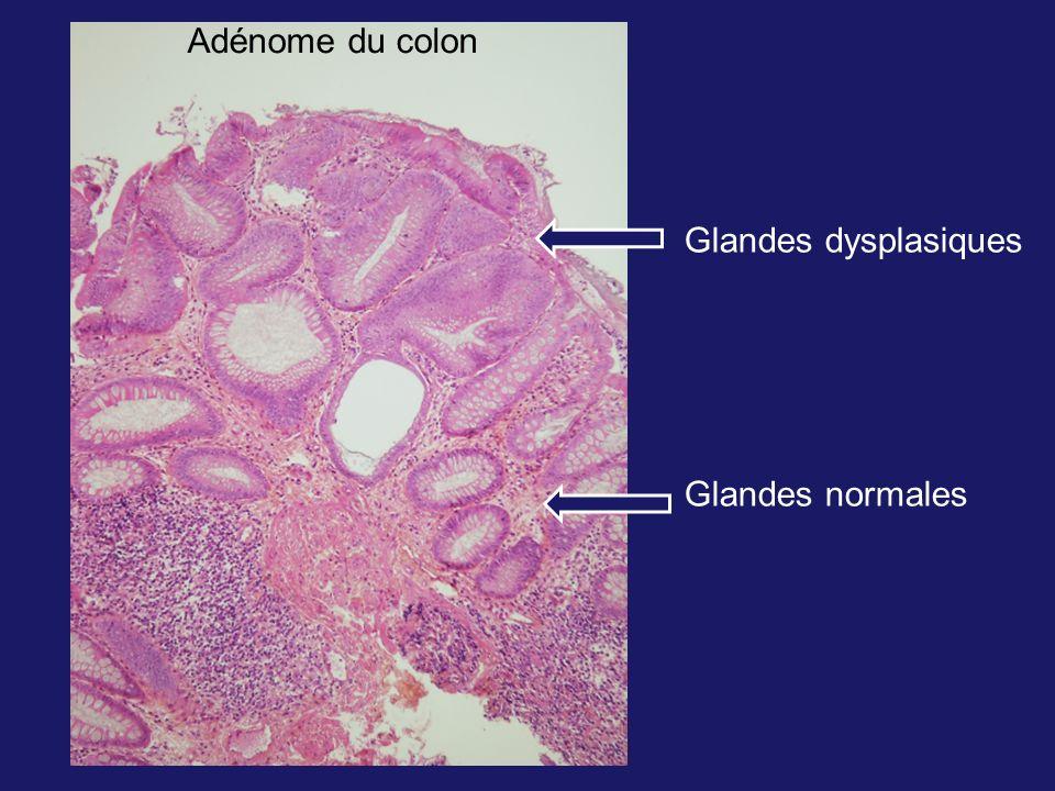 Adénome du colon Glandes dysplasiques Glandes normales