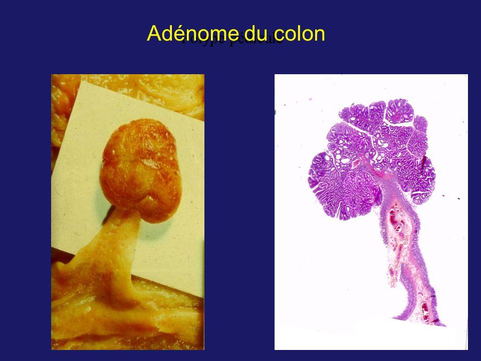 Adénome du colon Polype pédiculé