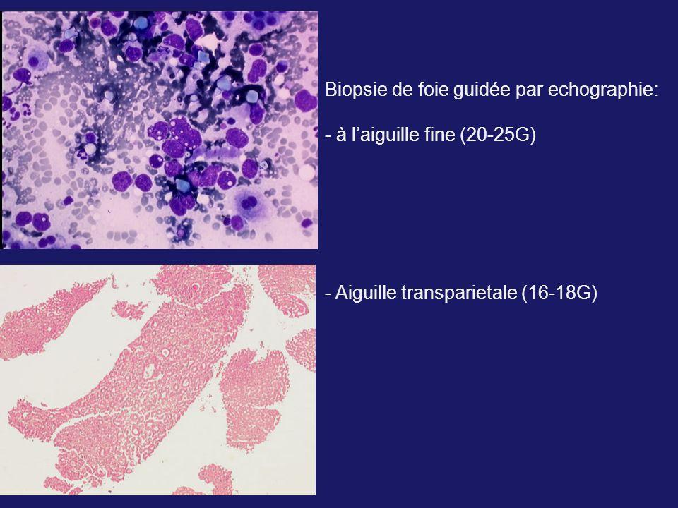 Biopsie de foie guidée par echographie: