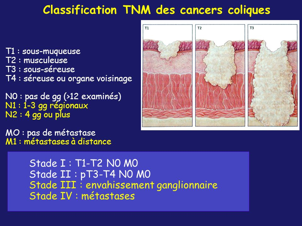 Classification TNM des cancers coliques
