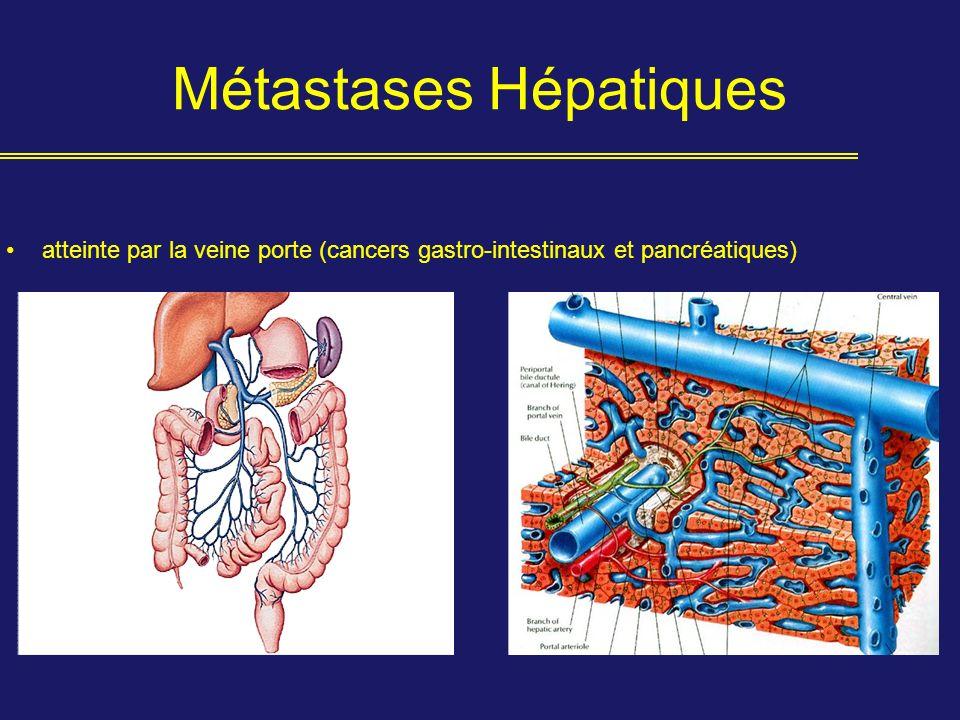 Métastases Hépatiques