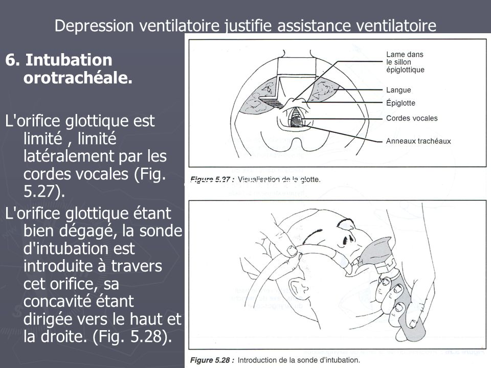 Depression ventilatoire justifie assistance ventilatoire