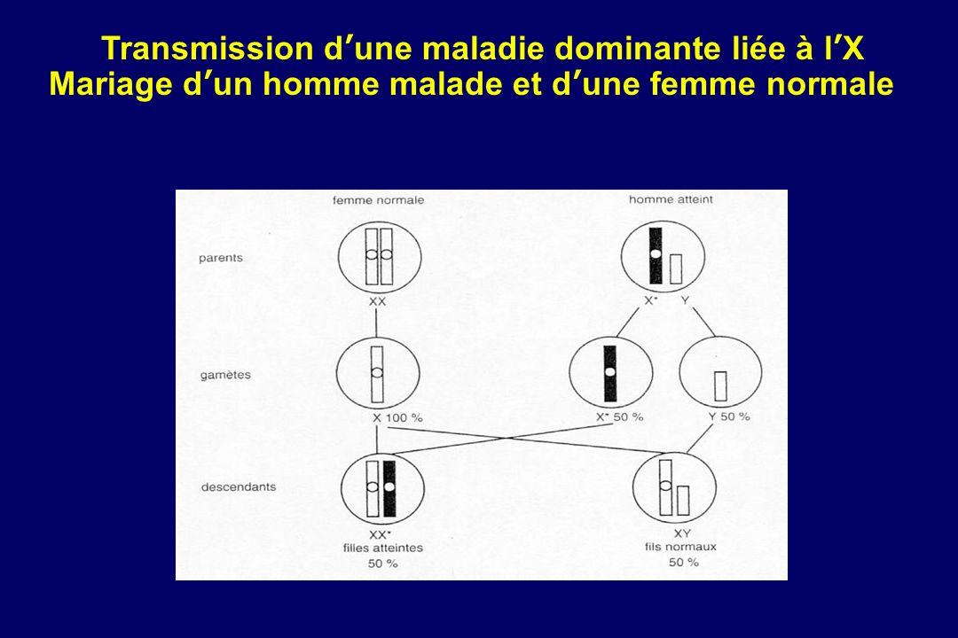 Transmission d'une maladie dominante liée à l'X