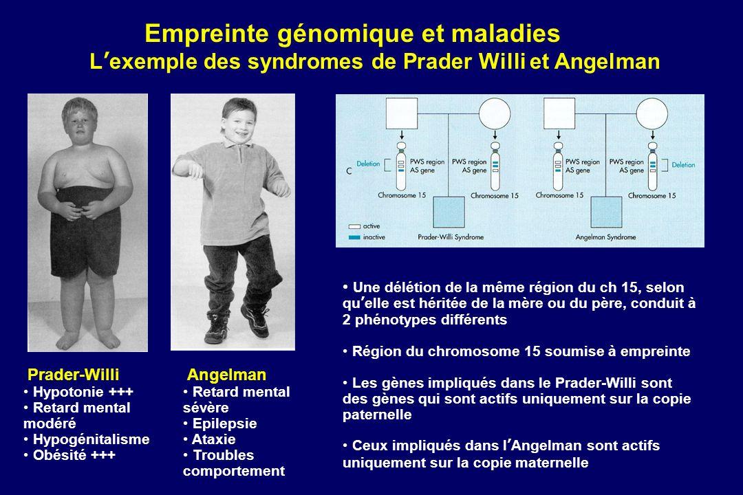 Empreinte génomique et maladies