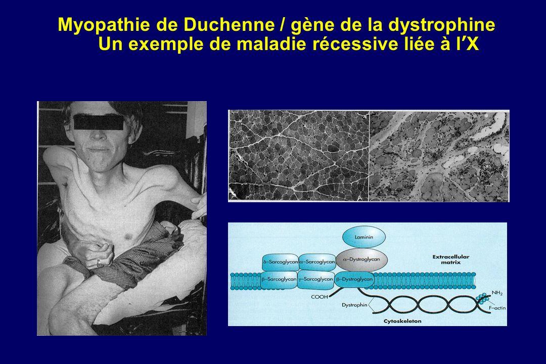 Myopathie de Duchenne / gène de la dystrophine