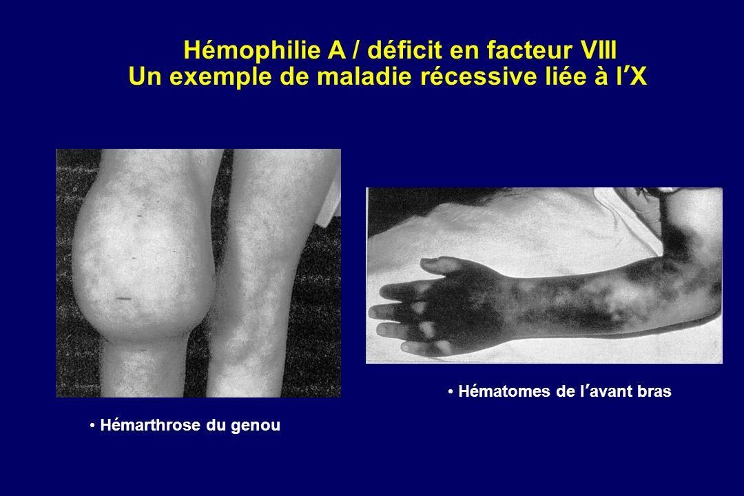 Hémophilie A / déficit en facteur VIII