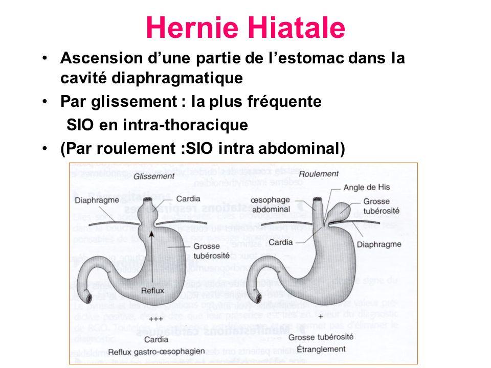 Hernie Hiatale Ascension d'une partie de l'estomac dans la cavité diaphragmatique. Par glissement : la plus fréquente.