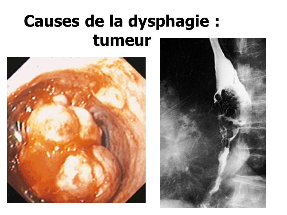 Causes de la dysphagie : tumeur