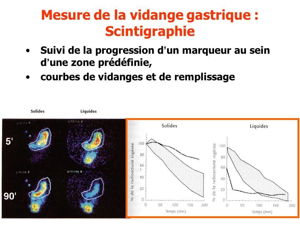 Mesure de la vidange gastrique : Scintigraphie