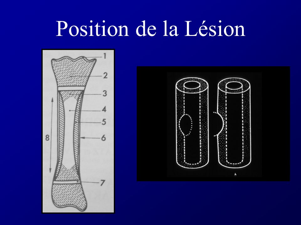 Position de la Lésion