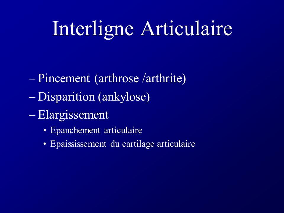 Interligne Articulaire