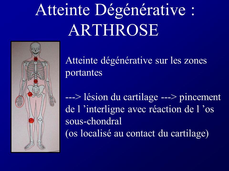 Atteinte Dégénérative : ARTHROSE