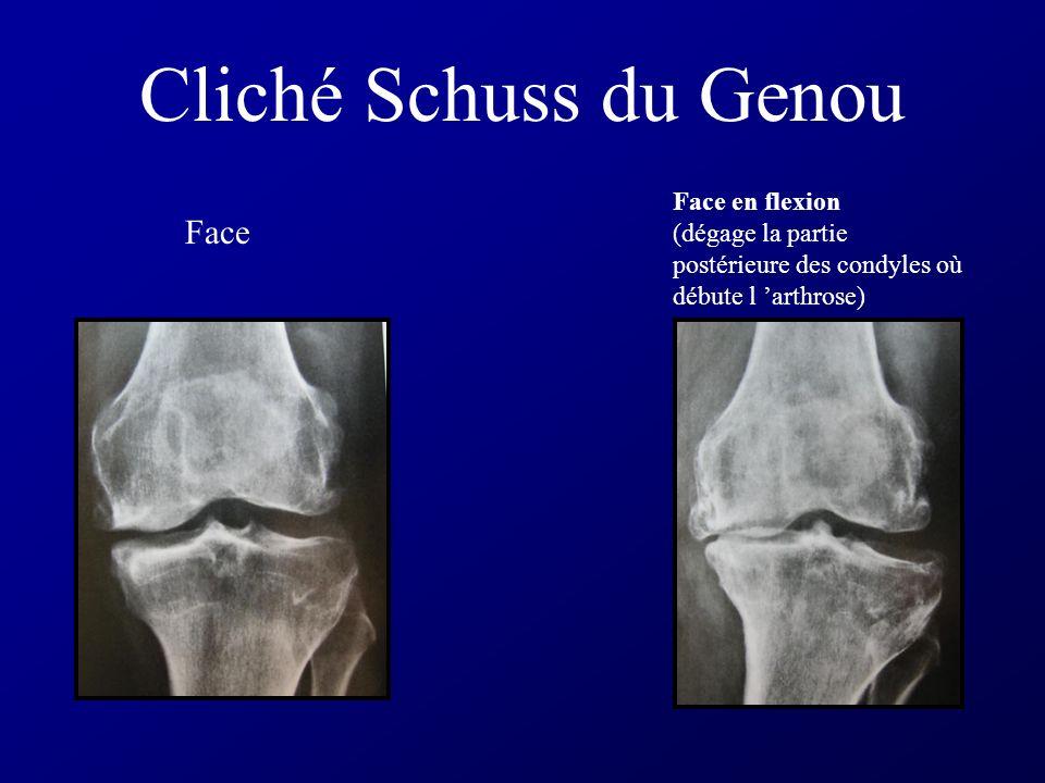 Cliché Schuss du Genou Face Face en flexion (dégage la partie