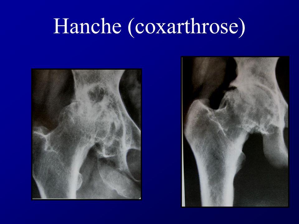 Hanche (coxarthrose)