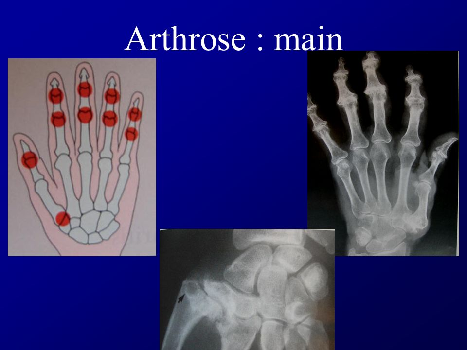 Arthrose : main