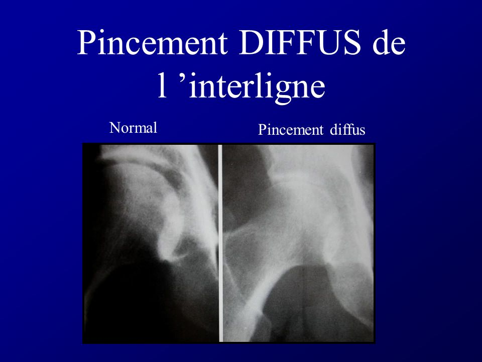 Pincement DIFFUS de l 'interligne