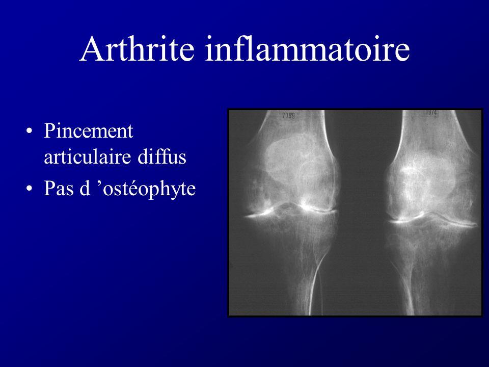 Arthrite inflammatoire