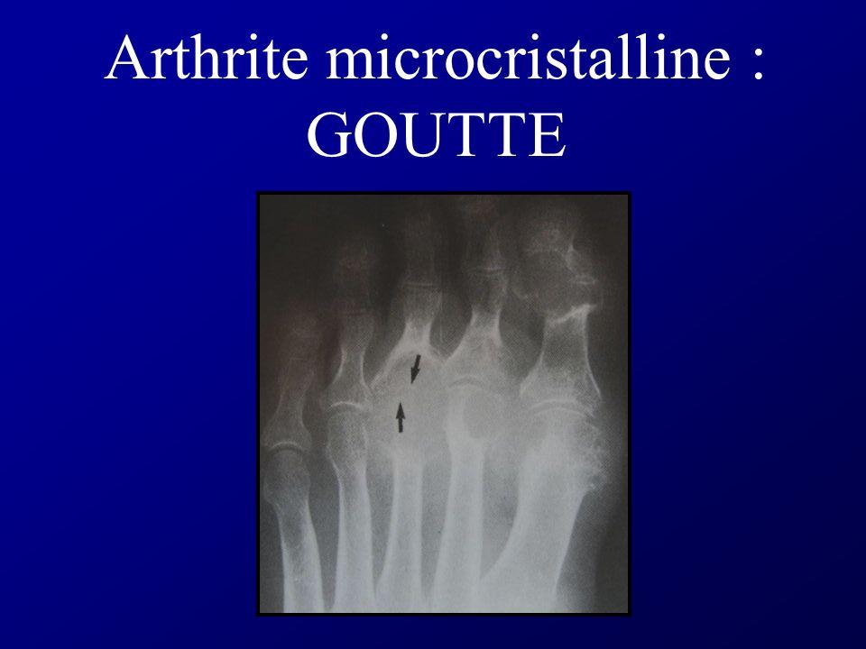 Arthrite microcristalline : GOUTTE