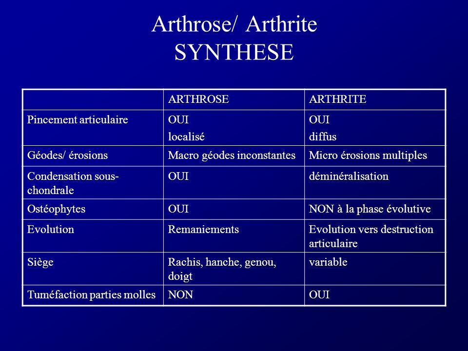 Arthrose/ Arthrite SYNTHESE