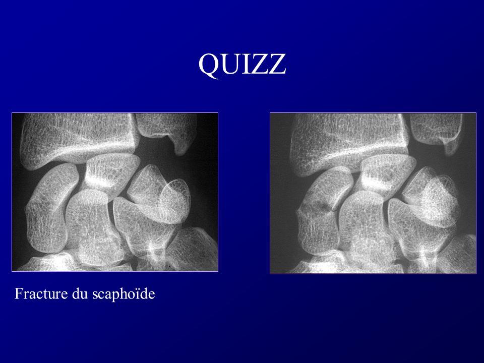 QUIZZ Fracture du scaphoïde