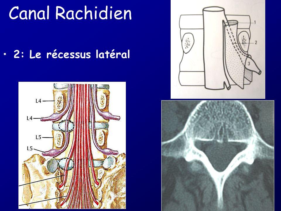 Canal Rachidien 2: Le récessus latéral
