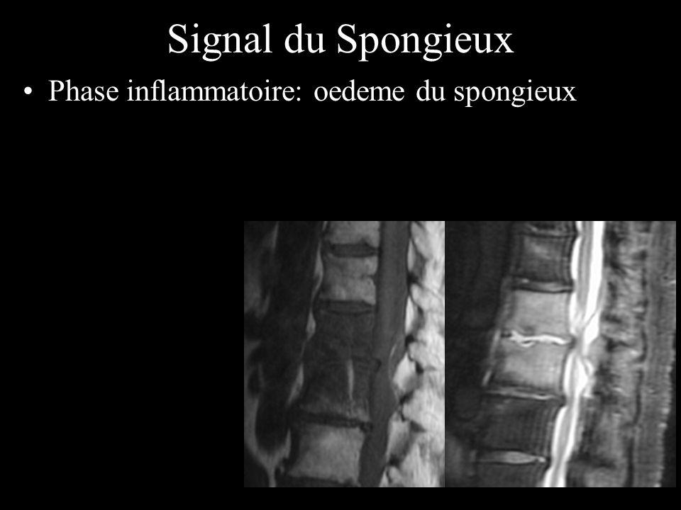 Signal du Spongieux Phase inflammatoire: oedeme du spongieux