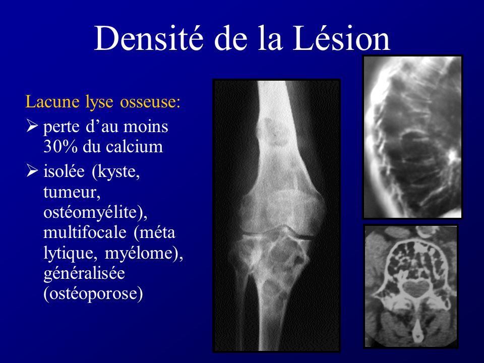 Densité de la Lésion Lacune lyse osseuse: