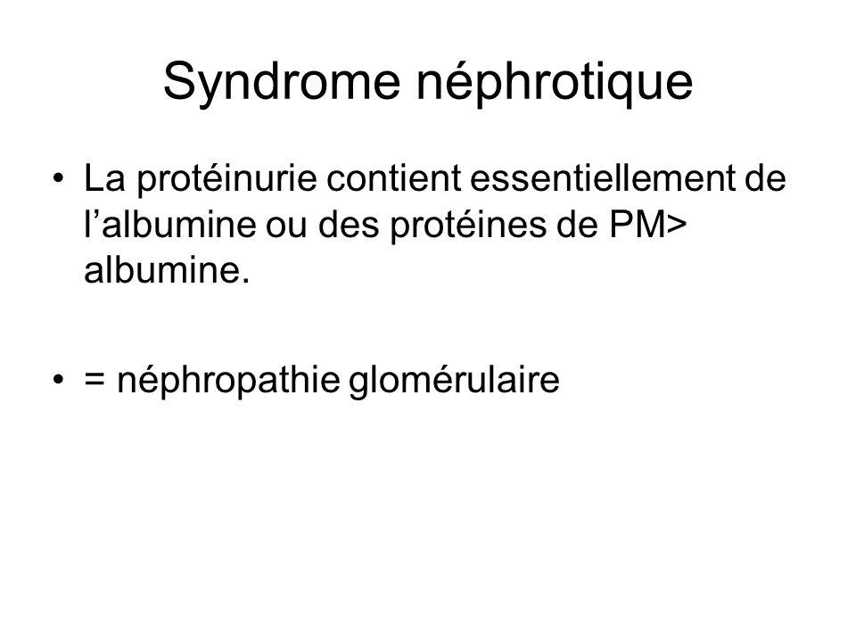 Syndrome néphrotique La protéinurie contient essentiellement de l'albumine ou des protéines de PM> albumine.