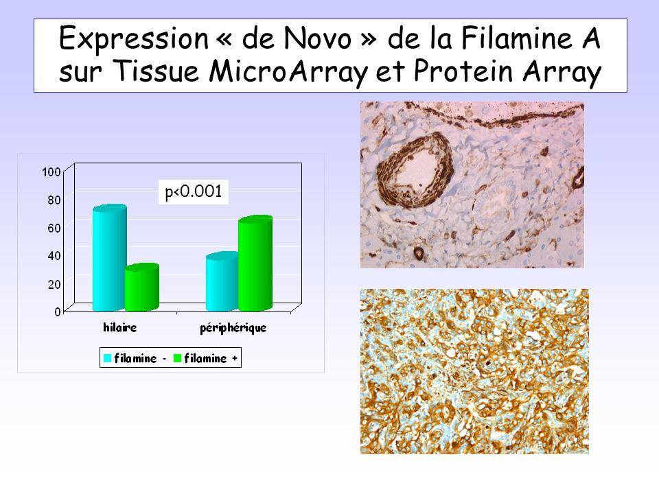 Expression « de Novo » de la Filamine A sur Tissue MicroArray et Protein Array