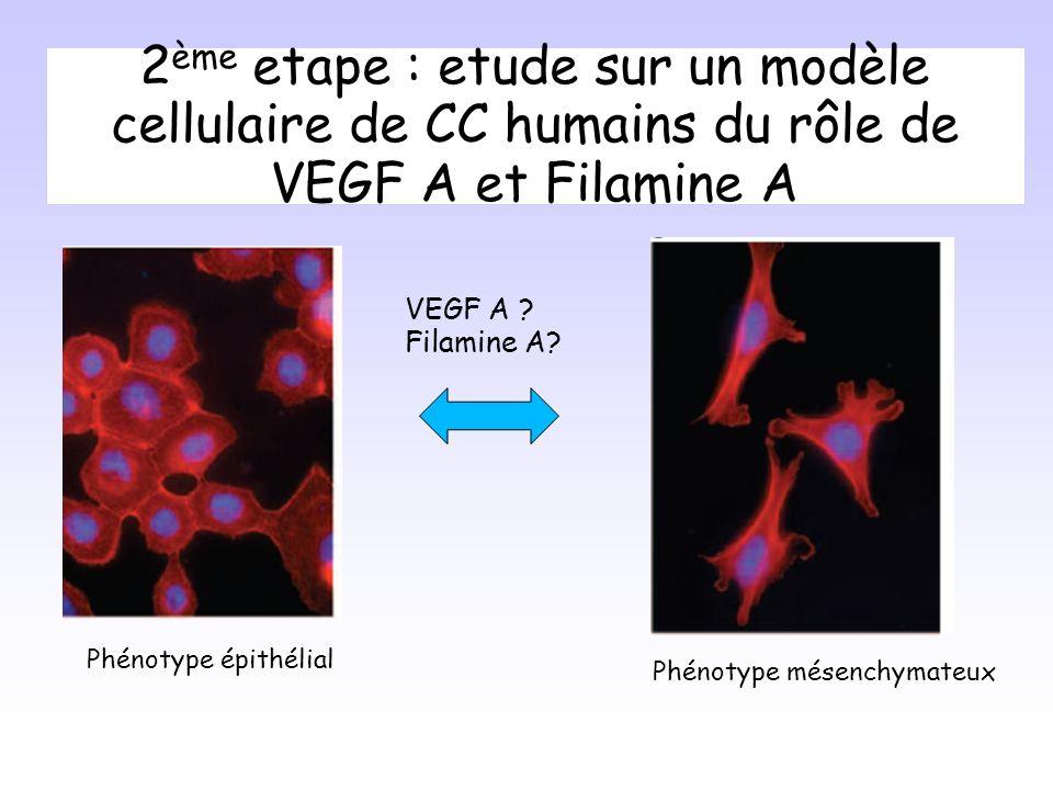 2ème etape : etude sur un modèle cellulaire de CC humains du rôle de VEGF A et Filamine A
