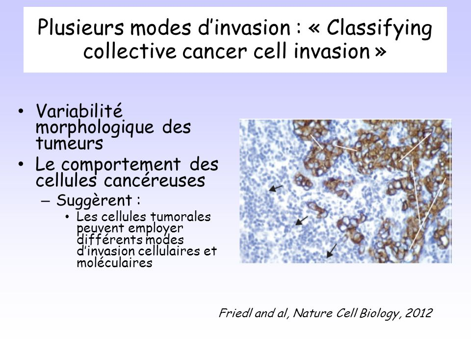 Plusieurs modes d'invasion : « Classifying collective cancer cell invasion »