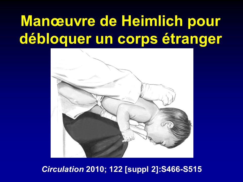 Manœuvre de Heimlich pour débloquer un corps étranger