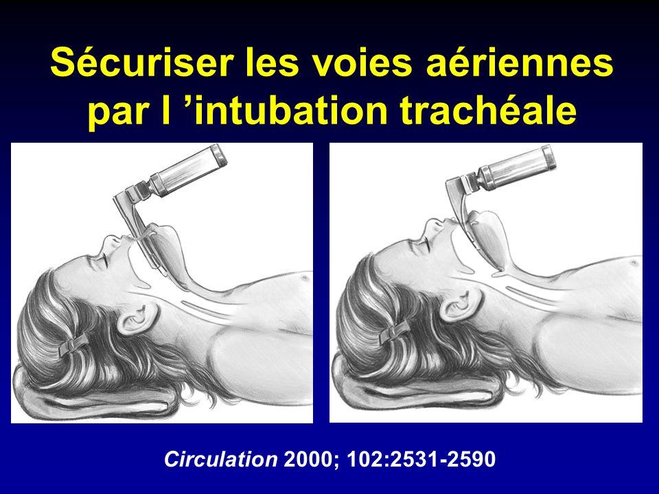 Sécuriser les voies aériennes par l 'intubation trachéale