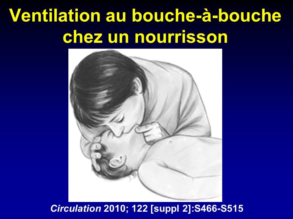 Ventilation au bouche-à-bouche chez un nourrisson