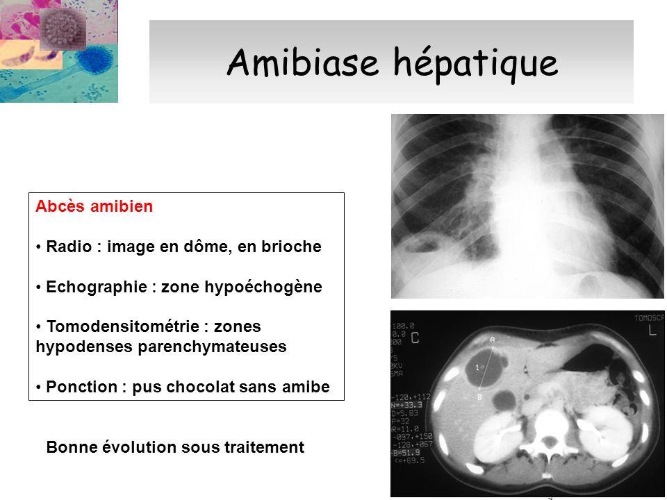 Amibiase hépatique Abcès amibien Radio : image en dôme, en brioche