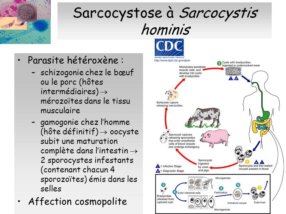 Sarcocystose à Sarcocystis hominis