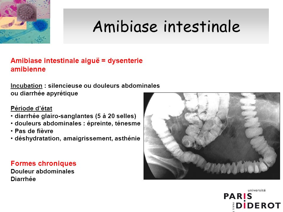 Amibiase intestinale Amibiase intestinale aiguë = dysenterie amibienne
