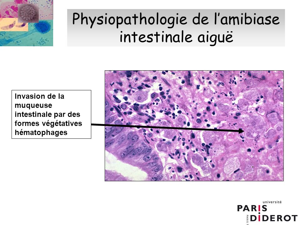 Physiopathologie de l'amibiase intestinale aiguë
