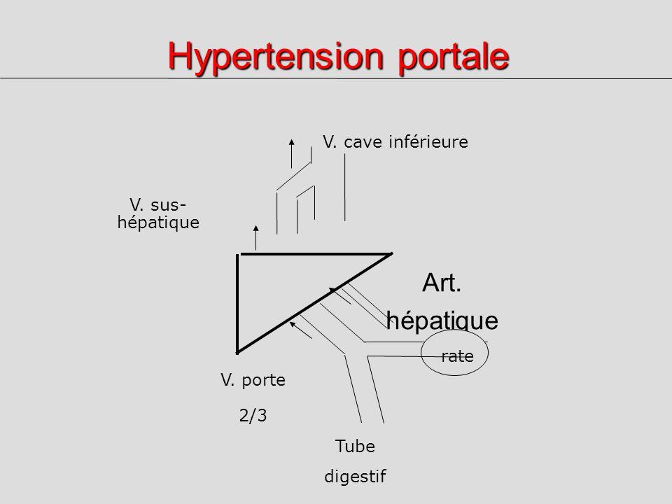 Hypertension portale Art. hépatique 1/3 V. cave inférieure