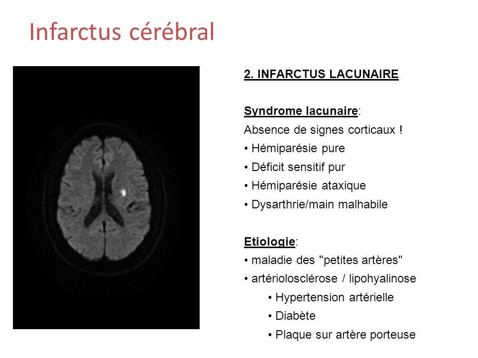 Infarctus cérébral 2. INFARCTUS LACUNAIRE Syndrome lacunaire: