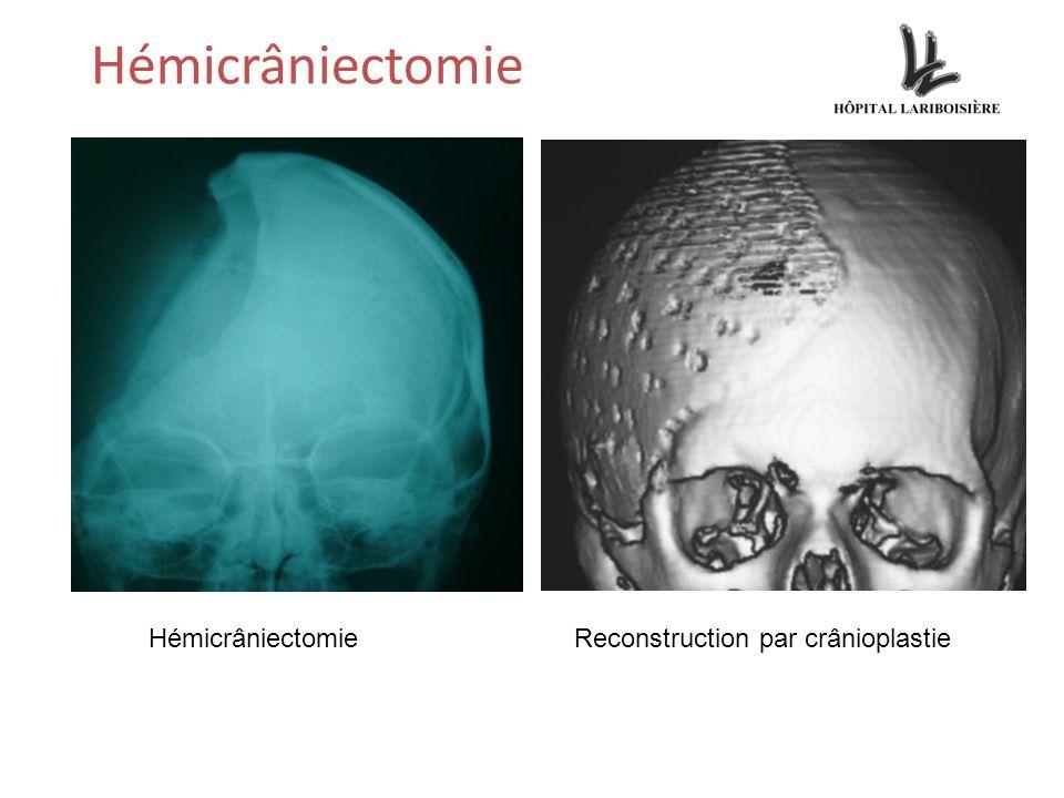 Hémicrâniectomie Hémicrâniectomie Reconstruction par crânioplastie