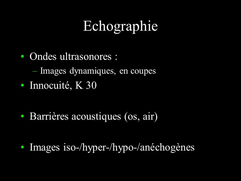 Echographie Ondes ultrasonores : Innocuité, K 30