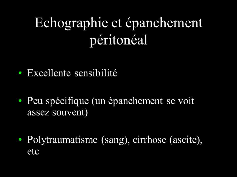 Echographie et épanchement péritonéal