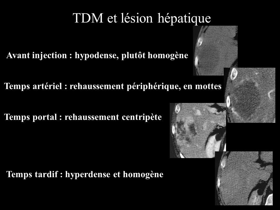 TDM et lésion hépatique